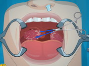 Operate Now: Tonsil Surgery Game